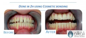 Cosmetic bonding - image