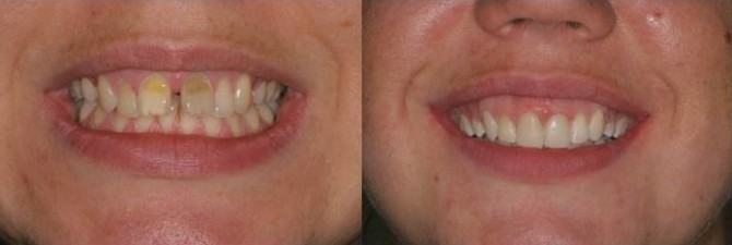 Braces-and-whitening-london-670x225