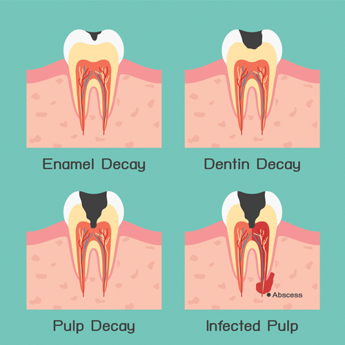 Dental fillings putney tooth coloured fillings london cavity fix fillings solutioingenieria Choice Image