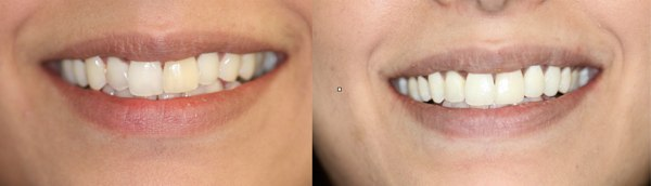 six-month-braces-Putney-SW15