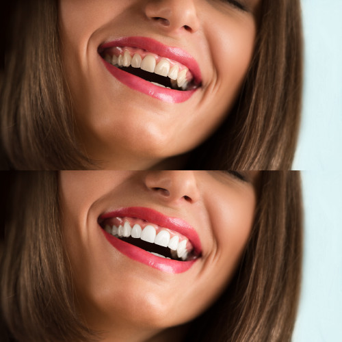 Teeth Whitening for a Brighter Smile - image