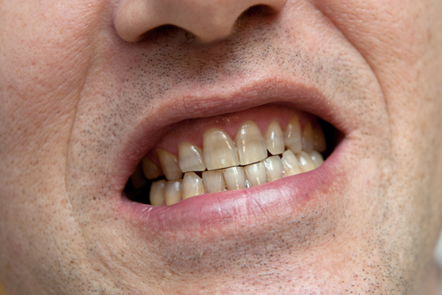 What to Do About Your Stained Teeth