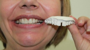 how to close a gap in your teeth