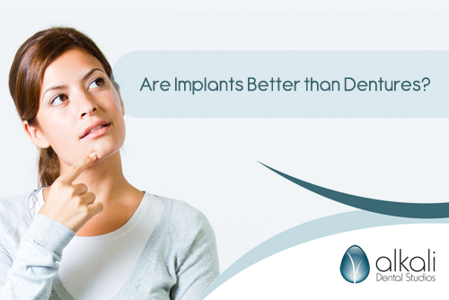 Are Implants Better than Dentures in Putney