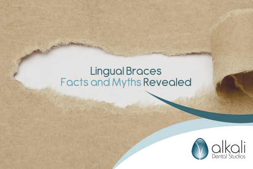 Lingual Braces in Putney Facts and Myths Revealed