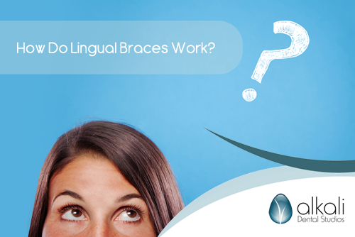 How Do Lingual Braces Work in Putney