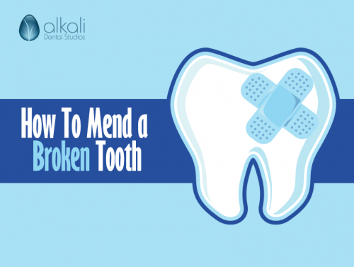 How To Mend a Broken Tooth in Putney