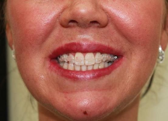 6 months braces