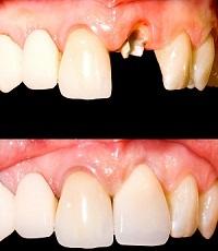 I have a broken / weak tooth - image