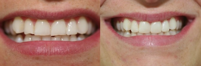 Before-after-teeth-grinding-670x221