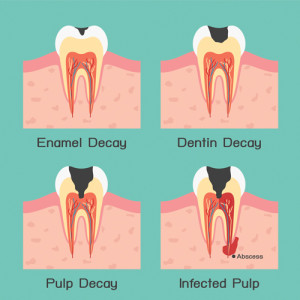 fillings - image