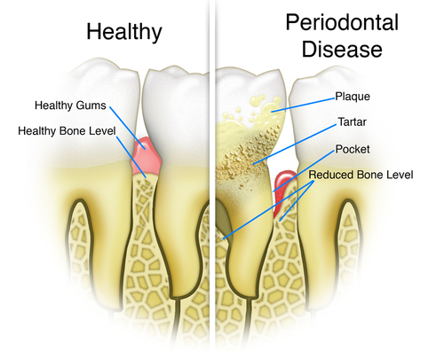 Why is it important to have a good dental hygiene? - image