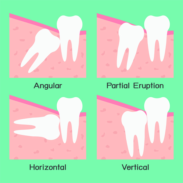 The reason why an impacted wisdom tooth should be removed - image
