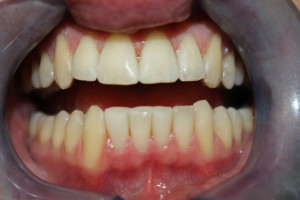How Do You Close The Gap In Your Front Teeth? - image