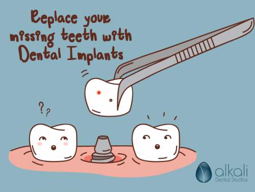 Dental Implants Replace your missing teeth with Dental Implants in Putney